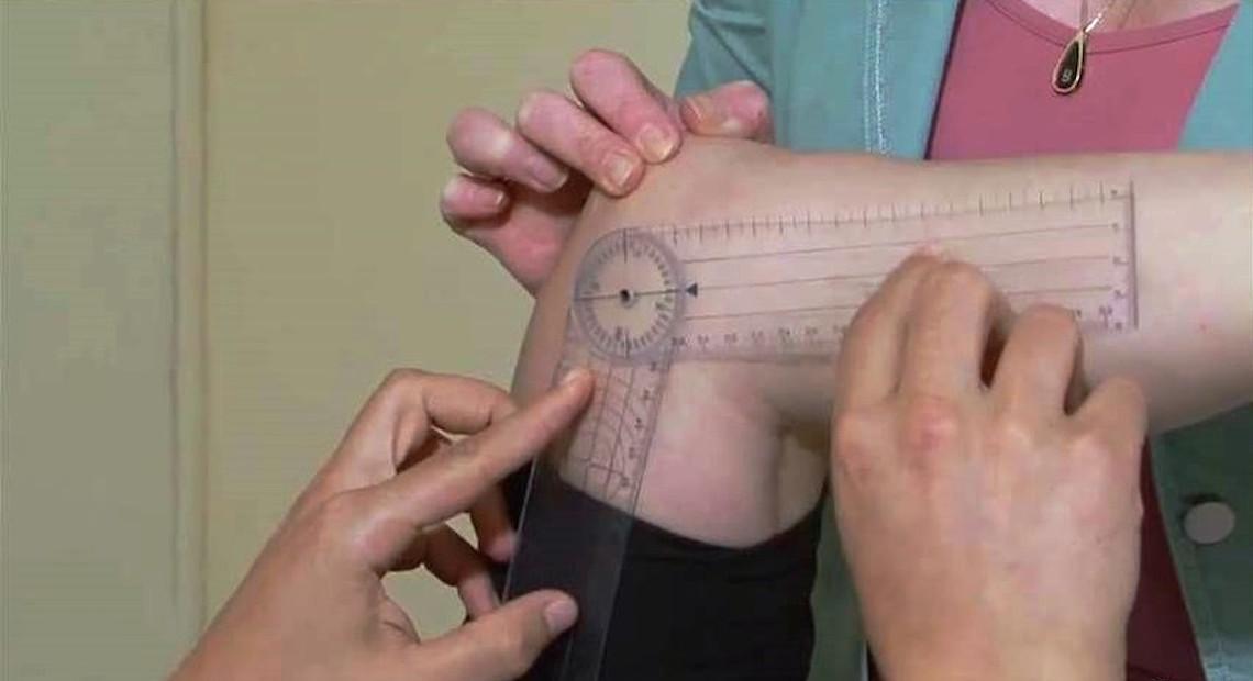 Rehabilitation knee